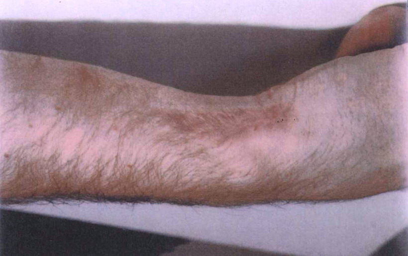 A cold burn on an injured party's arm
